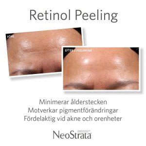Neostrata Retinol peeling